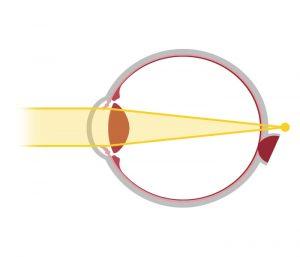 Votre correction : schéma de la presbytie - opticien à Nîmes La Belle Vision