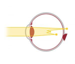 Votre correction : schéma de la astygmatie - opticien à Nîmes La Belle Vision