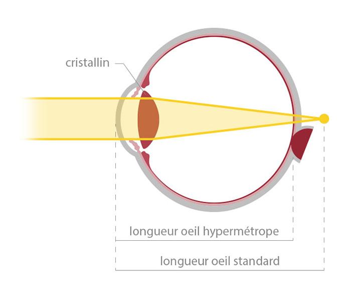 Votre correction : schéma de la hypermétropie - opticien à Nîmes La Belle Vision