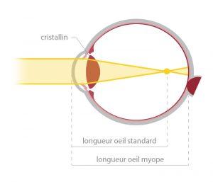 Votre correction : schéma de la myopie - opticien à Nîmes La Belle Vision